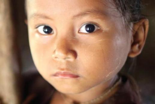 bambini sottopeso nel mondo