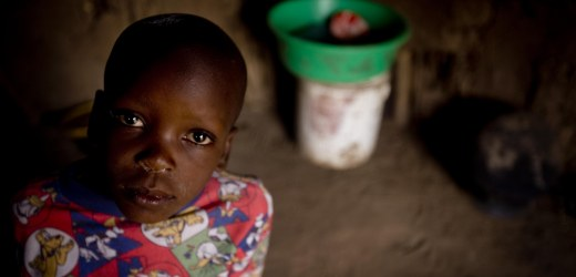 bambini africani con pancia gonfia